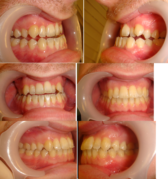 This Adult Patient completed treatment in 12 months