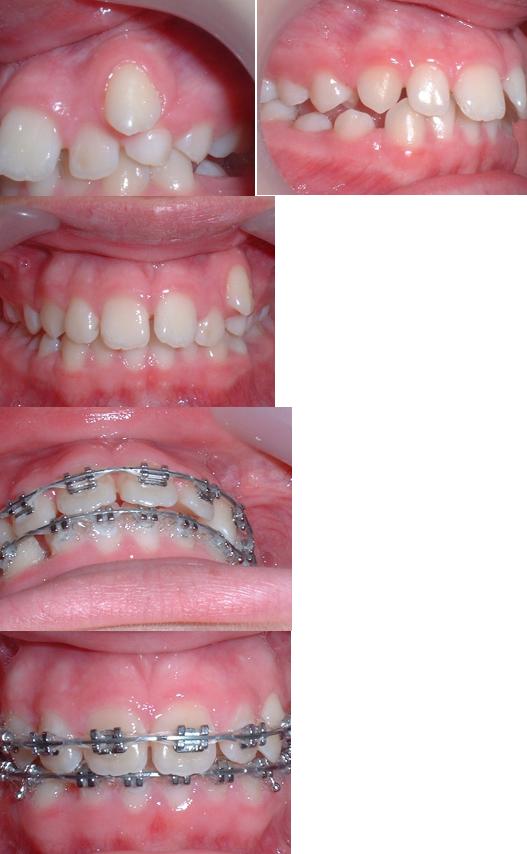 treatmentdurationfig2.png